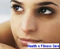 Dark Circles Under Eyes: Cure And Prevention Tips
