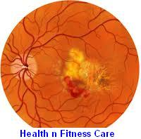 Symptoms And Treatment For Macular Degeneration