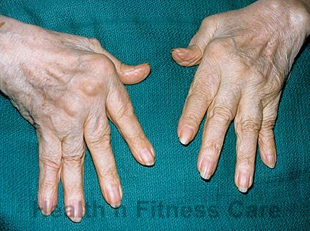 Causes And Cure For Rheumatoid Arthritis