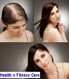 Hair Transplant – Healthy Hair on Your Crown
