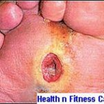 Diabetic Foot Ulcers