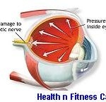 GLAUCOMA IN EYES: SYMPTOMS AND USEFUL TIPS