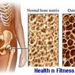 OSTEOPOROSIS CAN OCCUR DUE TO PHYSICAL INACTIVITY
