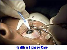 LASIK EYE SURGERY OR PRK SURGERY WHICH IS BETTER?