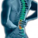 3 WAYS TO CURE BACK PAIN