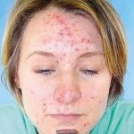 Hormonal Imbalance and Acne