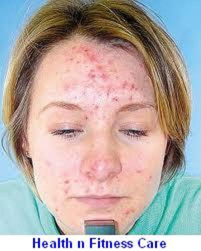 Hormonal Imbalance And Acne: Acne Is a Result Of Hormonal Imbalance