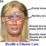 SINUSITIS SYMPTOMS AND TREATMENTS