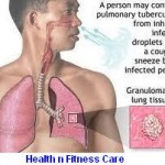 Tuberculosis symptoms, causes and treatment