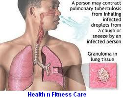 Tuberculosis (TB) Symptoms, Causes And Treatment