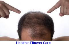 How To Prevent Premature Hair Loss