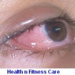 EYE FLU OR CONJUNCTIVITIS – SYMPTOMS AND TREATMENT