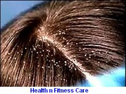 Dandruff Problem - Home Treatments