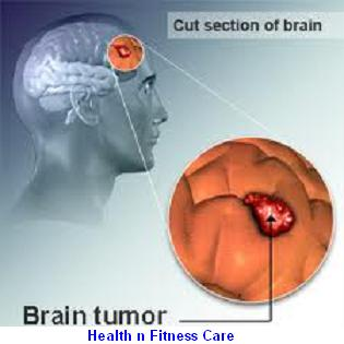 BRAIN TUMOR REMOVAL