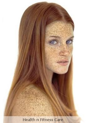 What Are Small Brown Spots On Face? How To Cure Sunspots On Skin?