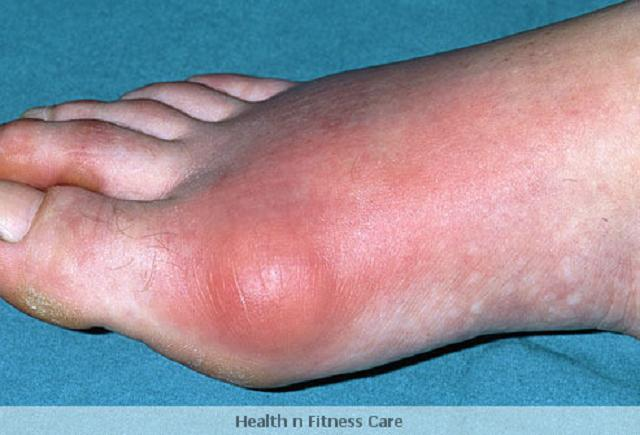Gout And Uric Acid